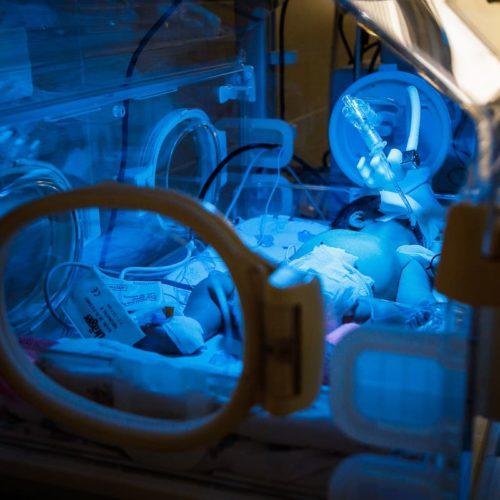 реанимация новорожденных (1)